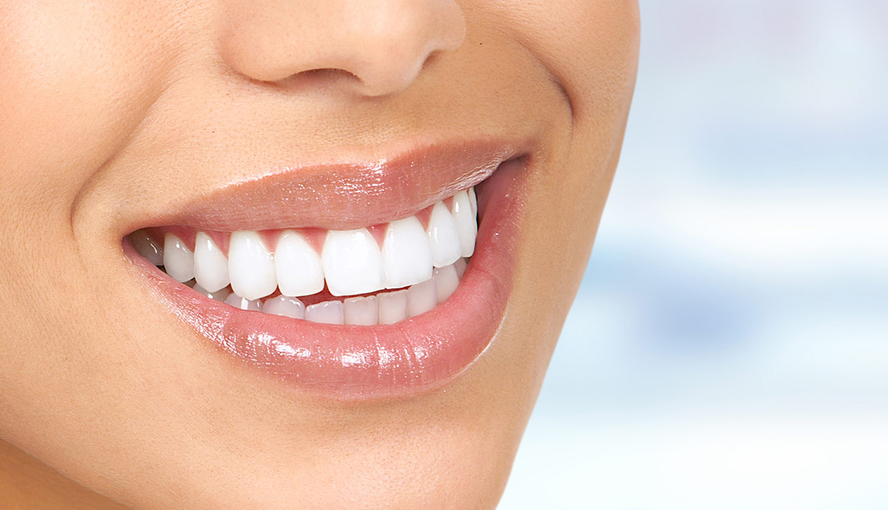 vitality teeth whitening