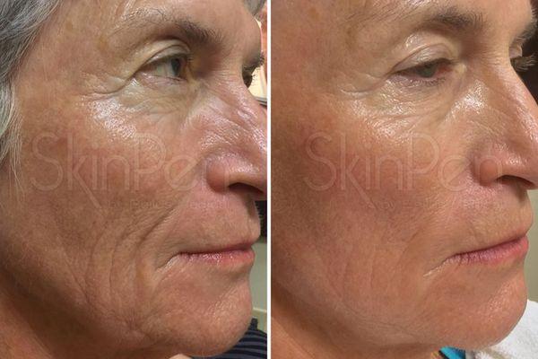b a Wrinkles Sydney Cosmetic Clinic cbd