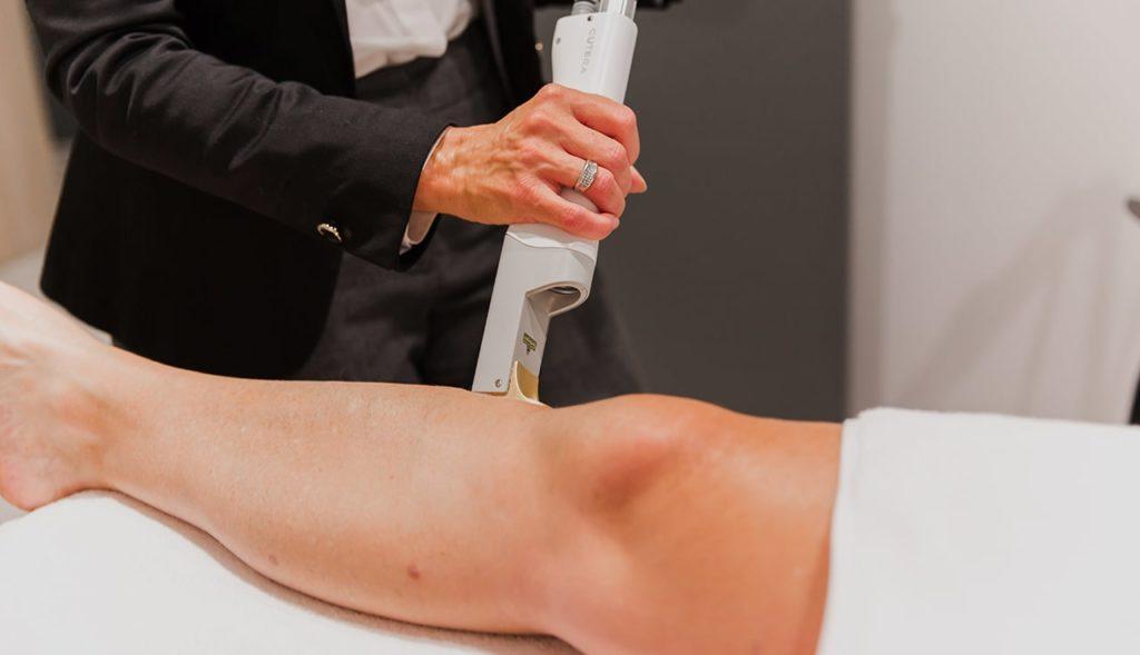 vitality laser hair removal