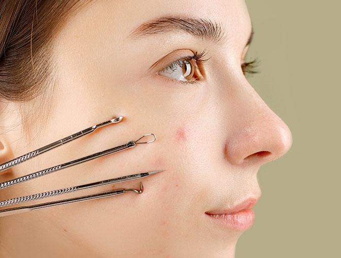 vitality skin concern acne scarring 1