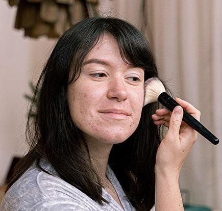 vitality skin concern bacteria