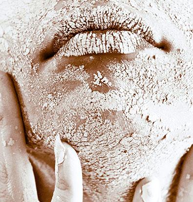 vitality skin concern dehydration