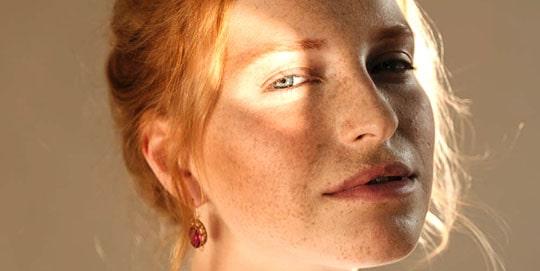 vitality skin concern sunspots dangerous