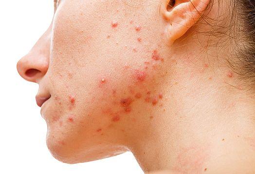 Acne Skin Concerns Vitality Geelong 2