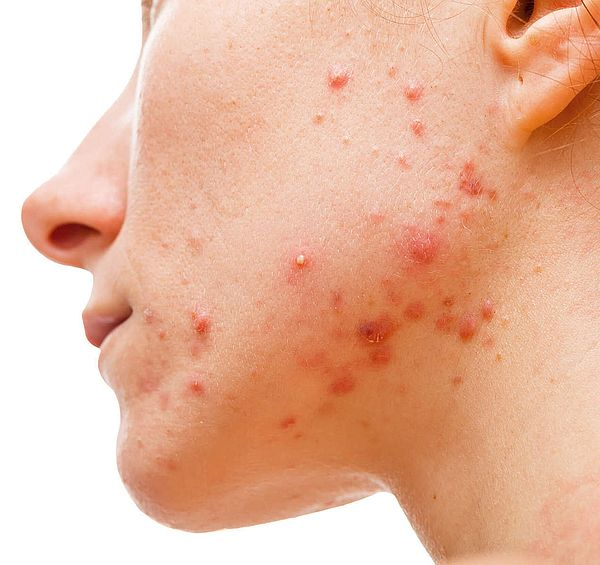 Acne Skin Concerns Vitality Geelong