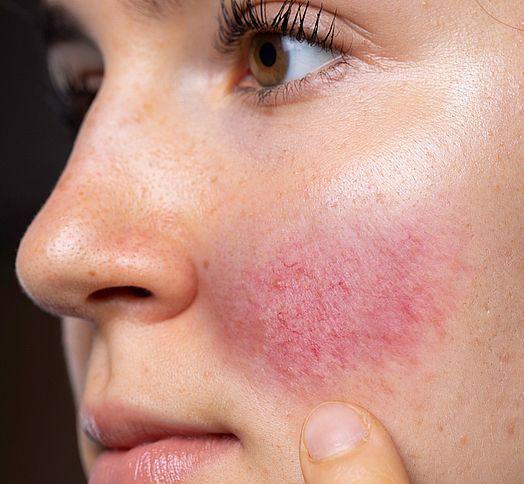 Rosacea Skin Concerns Vitality Laser Geelong