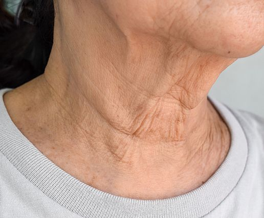 Skin Laxity Vitality Skin Laser