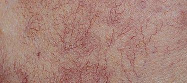 Skin fine lines Veins Vitality Skin Geelong 2