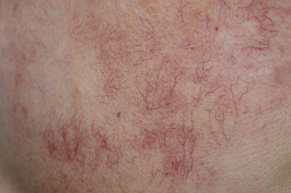 Skin fine lines Veins Vitality Skin Geelong