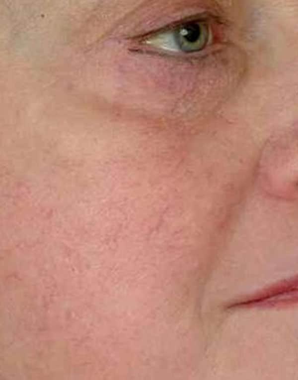 skin rejuvenation age spots