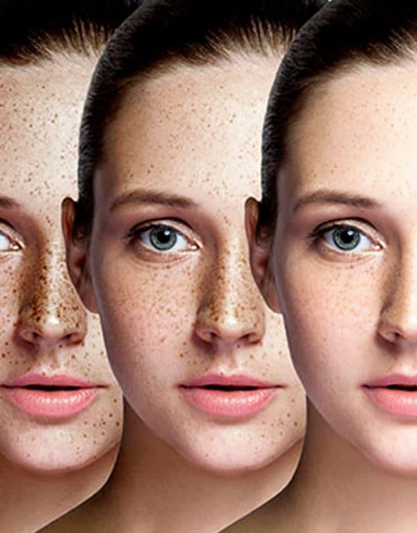 skin rejuvenation cosmelan