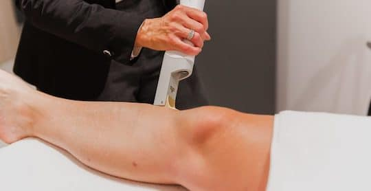 vitality laser hair removal 1