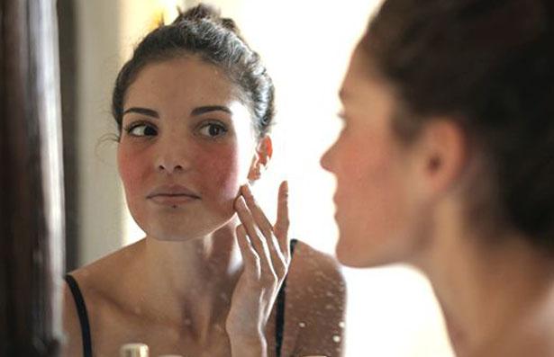vitality laser skin face vein rosacea