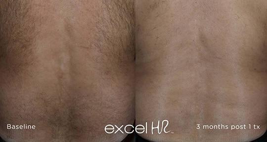 excel HR Hair